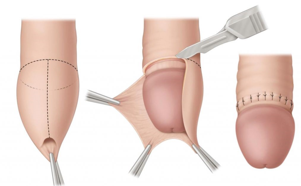 Fimosis y Circuncisión